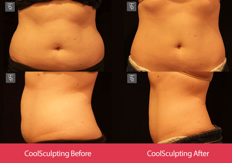 coolsculpting-before-after