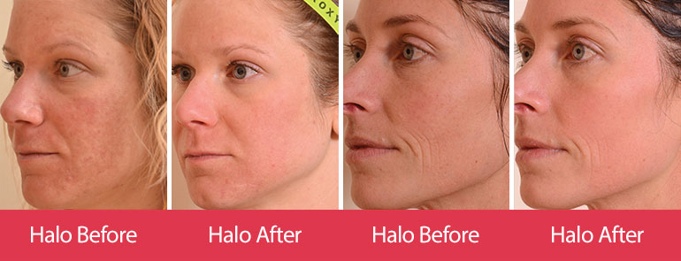 halo-before-after