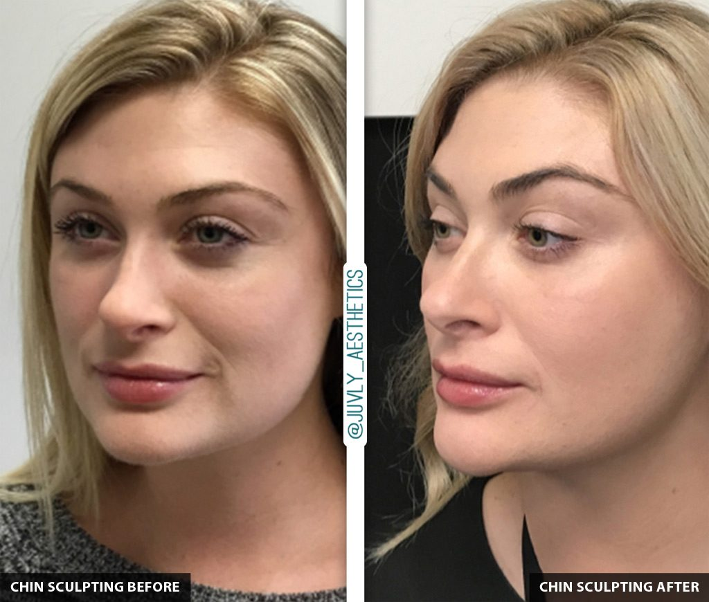 Chin-Sculpting-Before-After